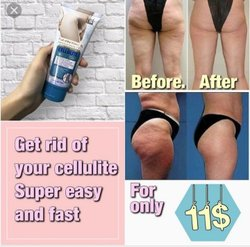 Cellulite gel cream