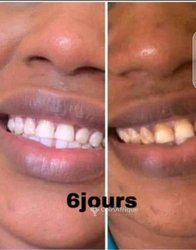 Blanchisseur dents